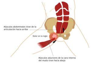 como se dice tendinitis rotuliana en ingles